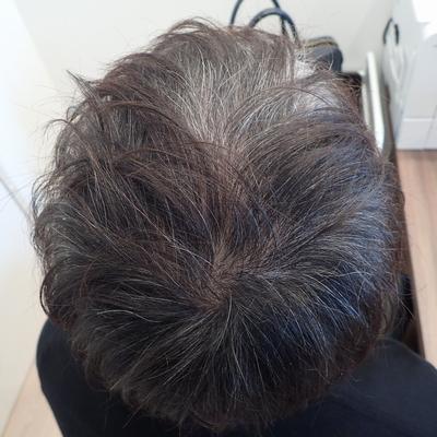 ミノキシジルタブレット(内服薬)の発毛効果と有効性