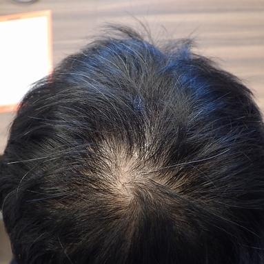 毛髪成長因子・育毛メソセラピー症例6