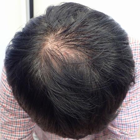 毛髪成長因子・育毛メソセラピー症例7