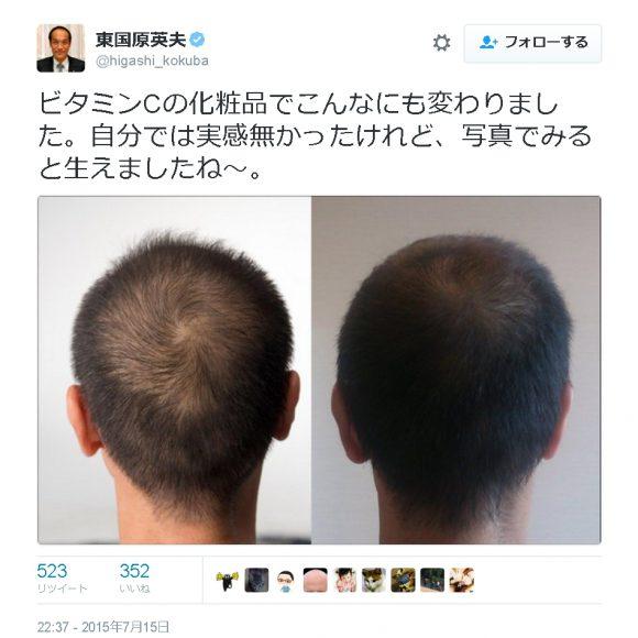 おかしな育毛ケア用品たち2(ビタブリッドC編)