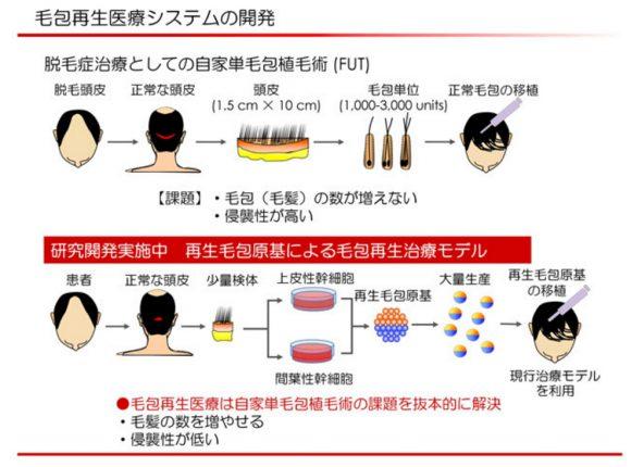 京セラの毛髪再生医療1