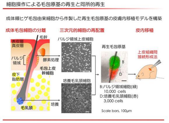 京セラの毛髪再生医療2