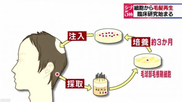 資生堂の毛髪再生医療