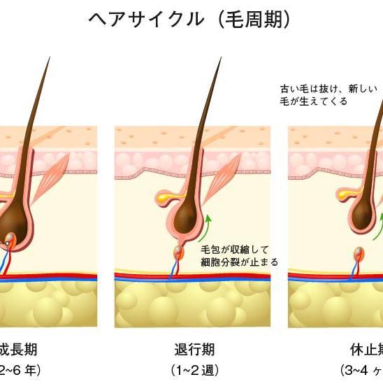 男性型脱毛症と女性男性型脱毛症の発症機序